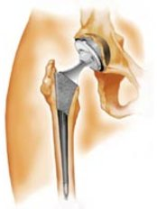 Hip Replacement - Orthopaedic Surgery India