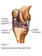 Knee Arthroscopic Washout - Orthopaedic Surgery India