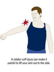 Rotator Cuff Repair - Orthopaedic Surgery India