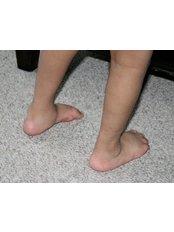 Club Foot Repair - Orthopaedic Surgery India