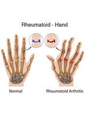 Rheumatoid Arthritis Treatment - Orthopaedic Surgery India