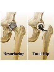 Hip Resurfacing - Shree Meenakshi Orthopedics & Sports Medicine