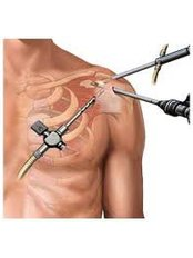 Arthroscopy - Shree Meenakshi Orthopedics & Sports Medicine