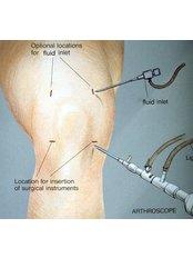 Knee Arthroscopic Washout - Shree Meenakshi Orthopedics & Sports Medicine