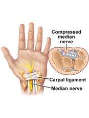 Carpal Tunnel Surgery - Shree Meenakshi Orthopedics & Sports Medicine