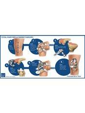 Knee Replacement - Shree Meenakshi Orthopedics & Sports Medicine