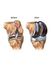 Knee Reconstructive Surgery - Shree Meenakshi Orthopedics & Sports Medicine