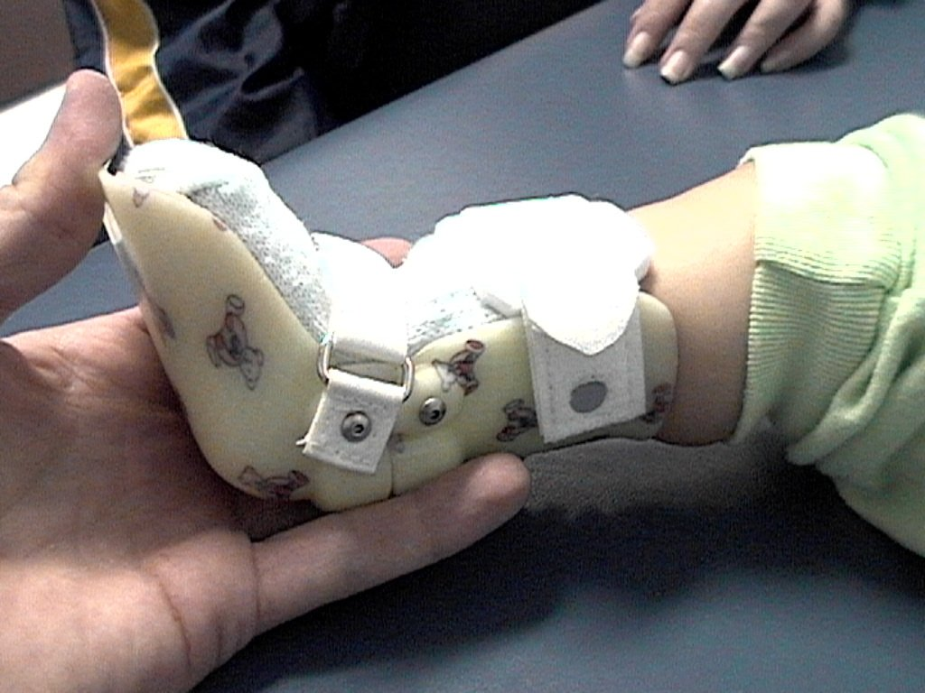 D S Prosthetic Amp Orthotic Rehab Clinic In Panchkula India