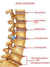 Laminectomy - Bangalore Spine Care Super Speciality Clinic and Research Centre