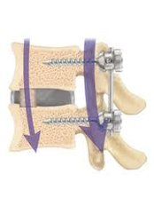 Spinal Fusion - Bangalore Spine Care Super Speciality Clinic and Research Centre