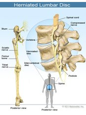 Sciatica Treatment - Dr Kavita's Physiotherapy Clinic in chandigarh