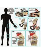 Exercise Therapy - Physiotherapy Clinic - Hyderabad , Ameerpet