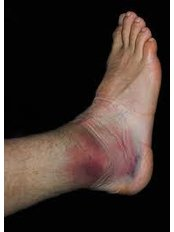 Ankle Injury Treatment - Adare Physiotherapy Clinic