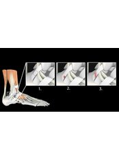 Ankle Injury Treatment - Muscleworx Physical Therapy