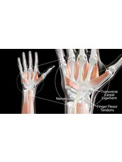 Carpal Tunnel Syndrome - Muscleworx Physical Therapy