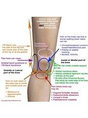 Knee Rehabilitation - Shaik Physiotherapy Centre
