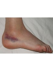 Ankle Injury Treatment - Able Physiotherapy