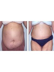 Weightloss Clinic - Bariatric Surgery Clinic in Egypt