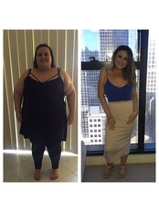 Thailand Gastric Sleeve Center - Jennifer Before and After Gastric Sleeve