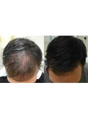 Scalp Micropigmentation Clinic - HeadPower - Plastic Surgery Clinic in Canada