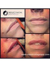 Reflect Facial Aesthetics - Longridge - Medical Aesthetics Clinic in the UK