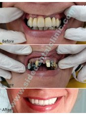 Baron Dental Clinic - Dental Clinic in Turkey