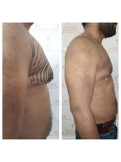 Kalosa - Hair & Cosmetic Clinic-New Delhi - male breast reduction