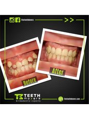 The Teeth Movers - Dental Clinic in Egypt