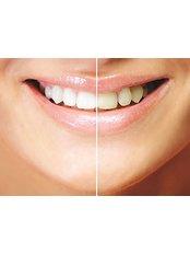 Noya Tours Health Organisations Agency - Cosmetic Dentistry
