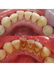 Medicure Polyclinic - Scaling Before & After