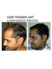 Dr Bakshi Cosmetic Clinic - hair transplant-laterall view