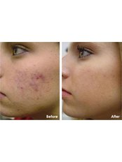 Clearskin Clinic - Chemical peels
