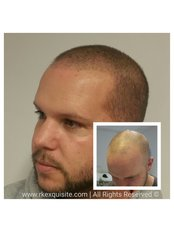 RK Exquisite - Hair loss tattoo - Scalp Micropigmentation