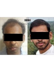 Prime Hair Studio - Mumbai - Hair Loss Clinic in India