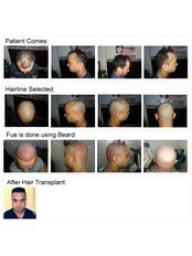 Satyam Hair Transplant Russia - Hair Loss Clinic in Russia