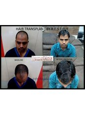 Dermaclinix - Hair Loss Clinic in India
