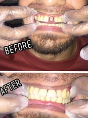 Cosmetic Dental Studio - Anterior Crown Placement