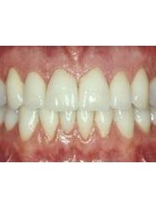 Denture Care Professionals Australia - Natural Looking Dentures