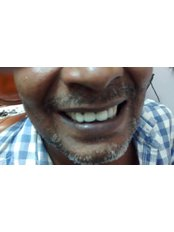 S.S.Dey Eye & Dental Clinic - after treatment 1