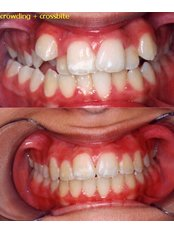 Perfect Smile - Dental Clinic in Israel