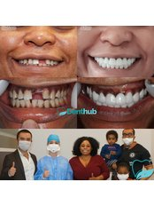 Denthub - Zirconium Crowns/Smile Makeover