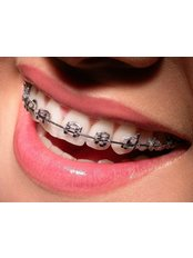 Braces Faces, Ankur Nursing Home - Dental Clinic in India