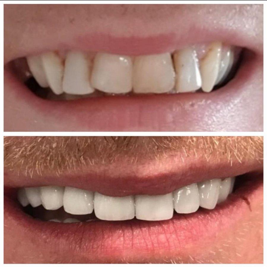 Safe Dent Dental Clinic -Dr Yesim Ramos in Antalya, Turkey