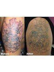 Hong Kong Laser Tattoo Removal Clinic - Medical Aesthetics Clinic in Hong Kong SAR