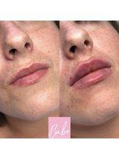 Babe Aesthetics - 1ml Lips