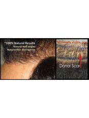 Dr. Muhammad Ahmad - Natural results