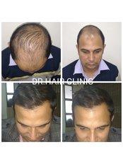 Dr. Hair Clinic - Medical Aesthetics Clinic in India