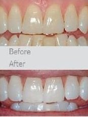 First Impressions Last Teeth Whitening - before/after