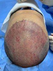 HairVita - Hair Loss Clinic in Ukraine
