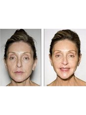 The Med Clinic Siam - Ulthera treatment before and after photo